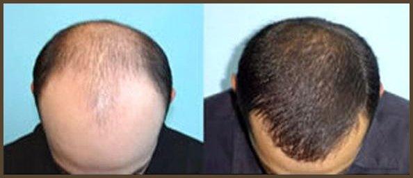 Dr Proctor - Hair Loss Treatment, Hair Regrowth